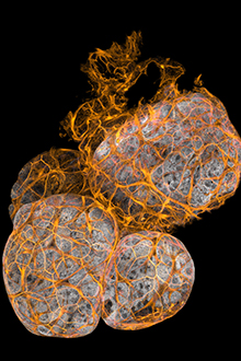 Grey and orange image of cells